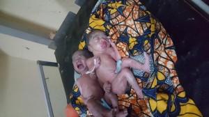 Prématurés de 7 mois - Les enfants noirs naissent blancs